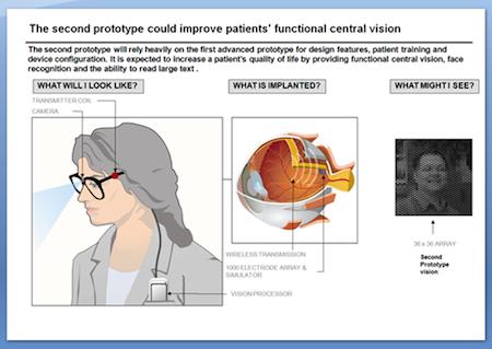 HDTVBlog.cz - obrázky - zdraví - bionické oko